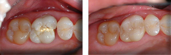 Before & After: Crowns