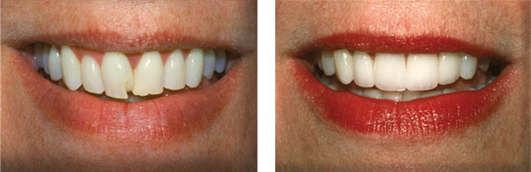 Before & After: Veneers