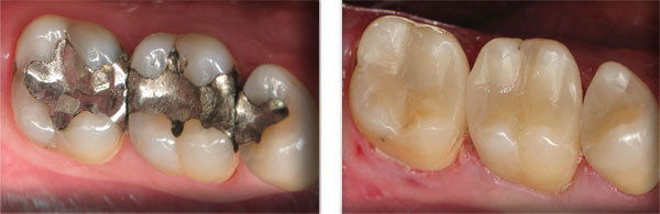 Before & After: Multiple Restorations