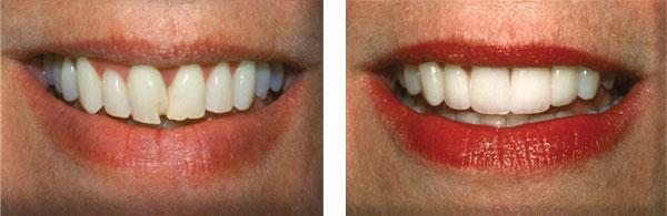Before & After: Veneers